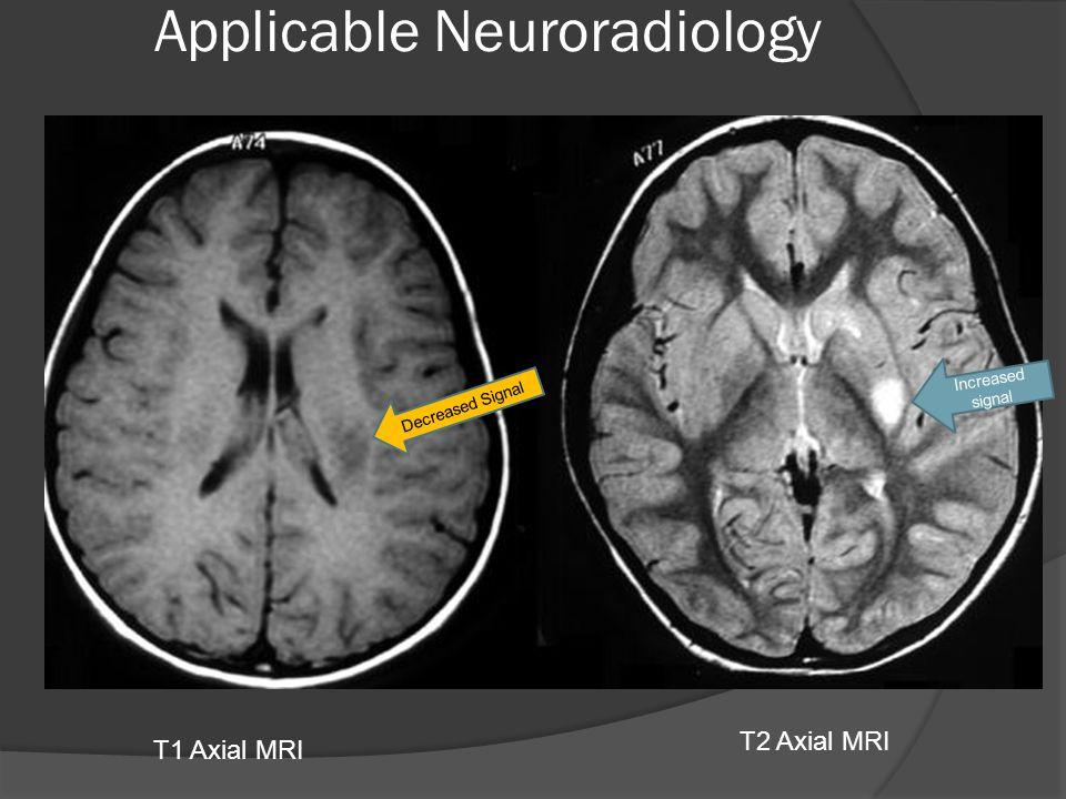 T1 Axial MRI T2 Axial MRI Decreased Signal Increased signal