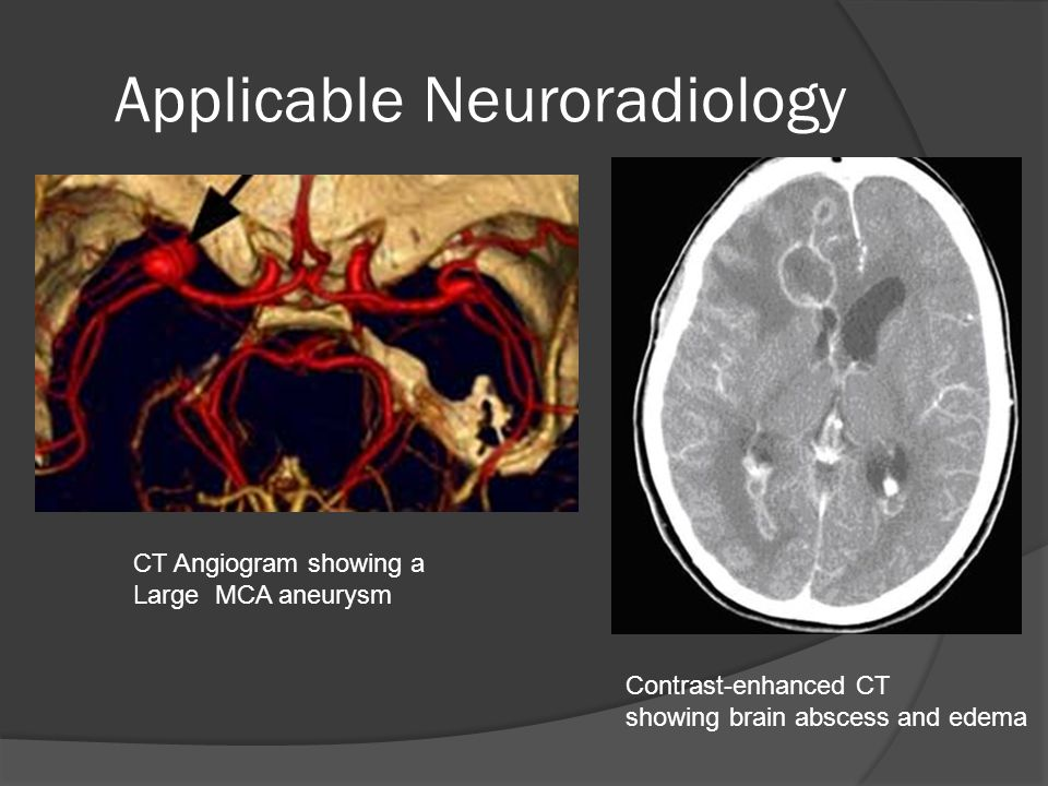 Applicable Neuroradiology