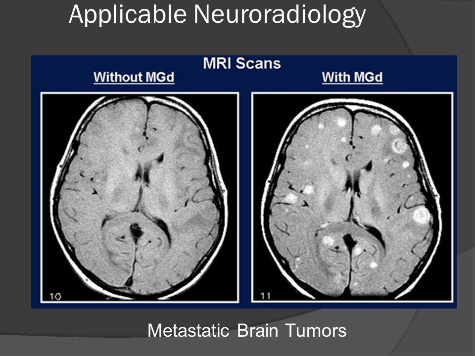 Metastatic Brain Tumors