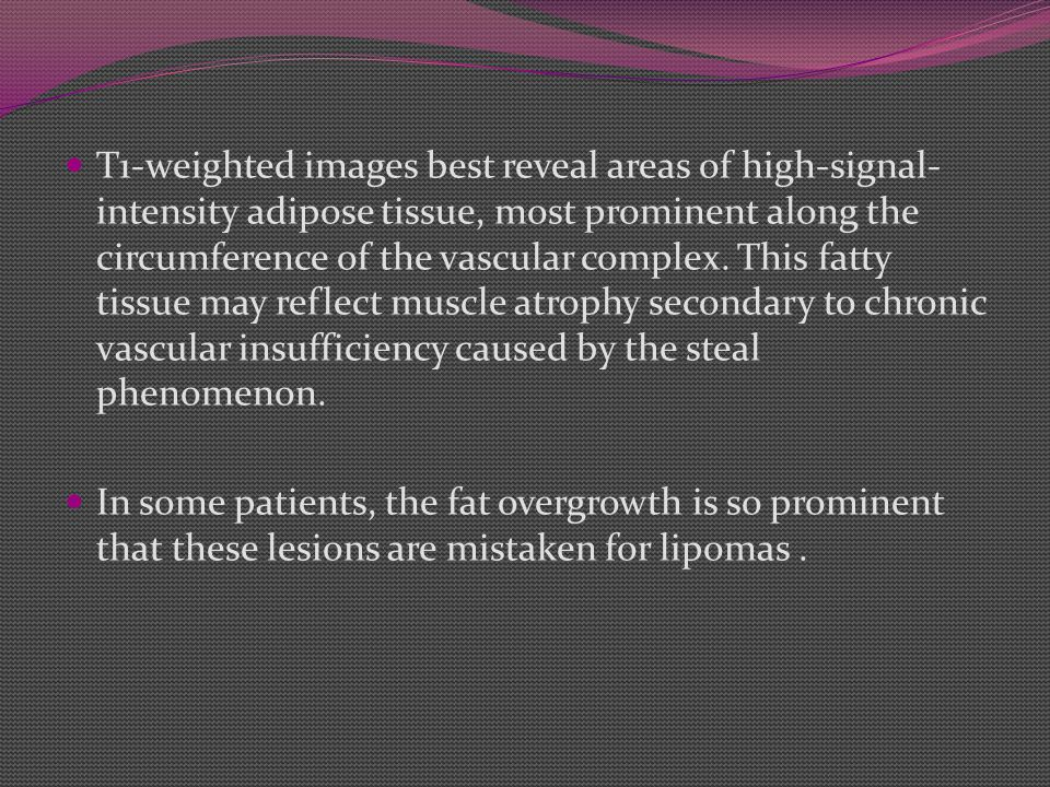 T1-weighted images best reveal areas of high-signal- intensity adipose tissue, most prominent along the circumference of the vascular complex. This fa