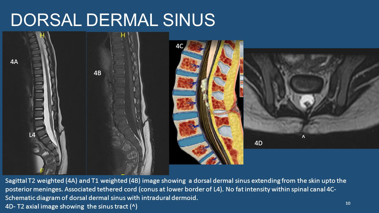DORSAL DERMAL SINUS L4 Sagittal T2 weighted (4A) and T1 weighted (4B) image showing a dorsal dermal sinus extending from the skin upto the posterior meninges.
