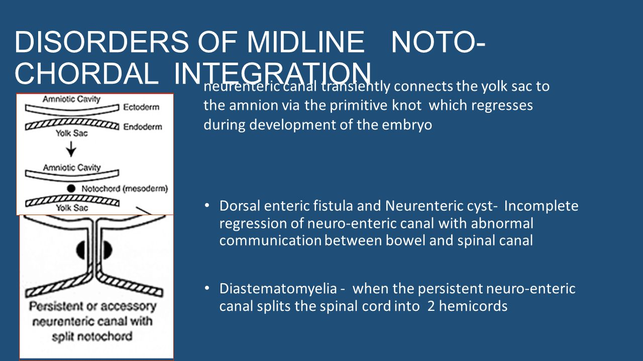 DISORDERS OF MIDLINE NOTO CHORDAL INTEGRATION Dorsal enteric fistula and Neurenteric cyst- Incomplete regression of neuro-enteric canal with abnormal communication between bowel and spinal canal Diastematomyelia - when the persistent neuro-enteric canal splits the spinal cord into 2 hemicords neurenteric canal transiently connects the yolk sac to the amnion via the primitive knot which regresses during development of the embryo