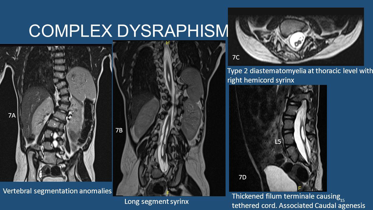 COMPLEX DYSRAPHISM Vertebral segmentation anomalies Long segment syrinx Type 2 diastematomyelia at thoracic level with right hemicord syrinx Thickened