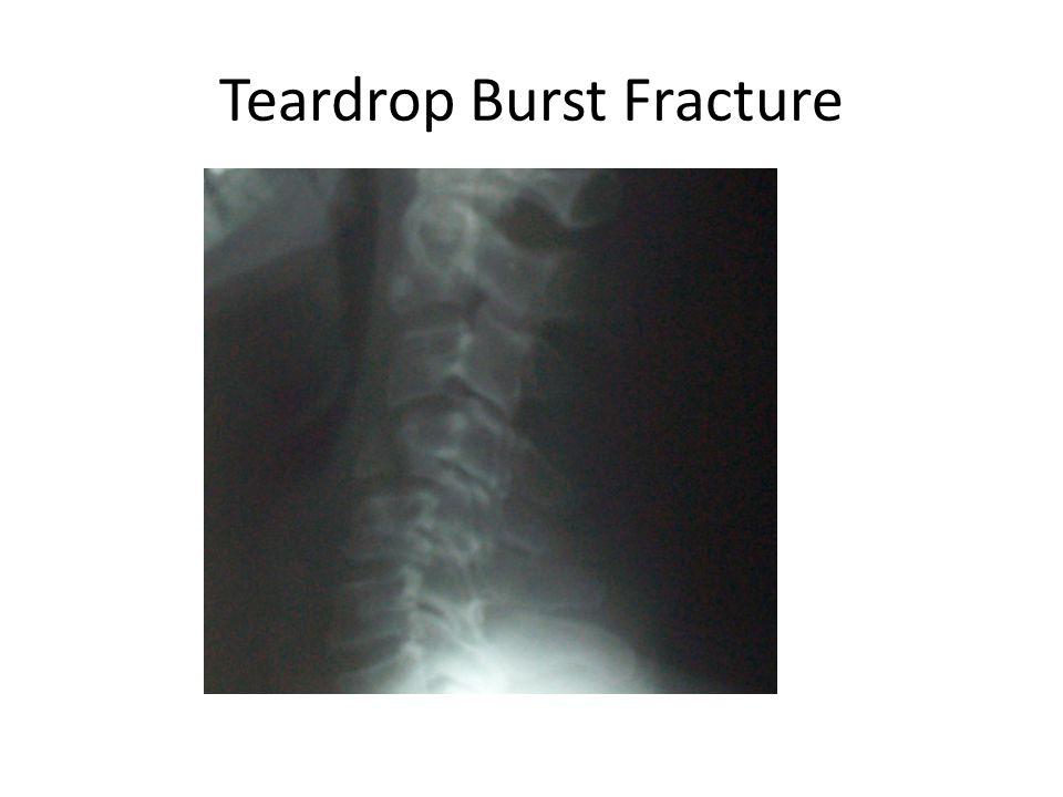 Teardrop Burst Fracture