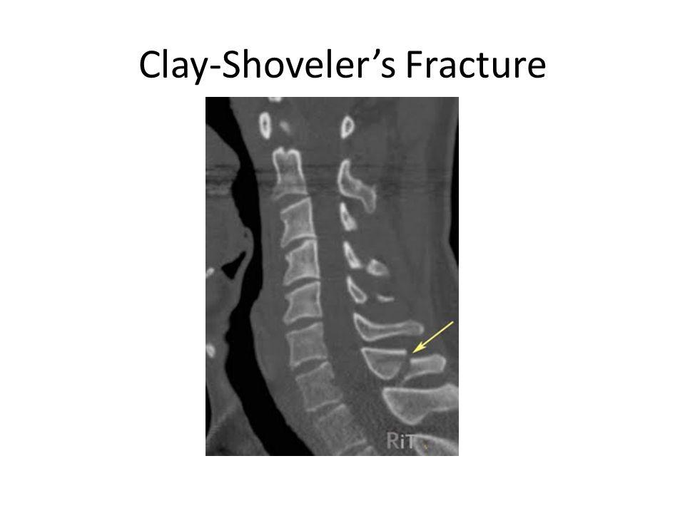 Clay-Shoveler's Fracture