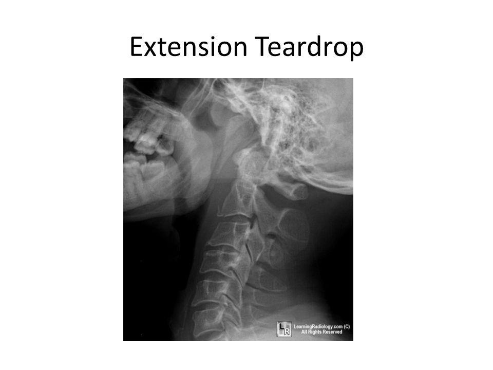 Extension Teardrop