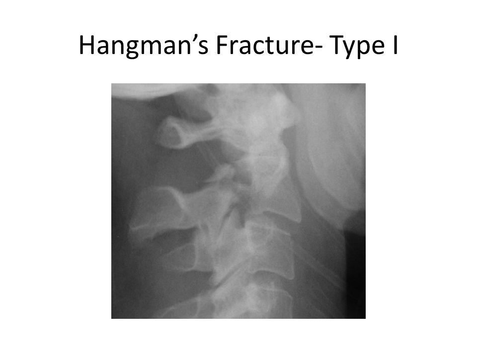 Hangman's Fracture- Type I