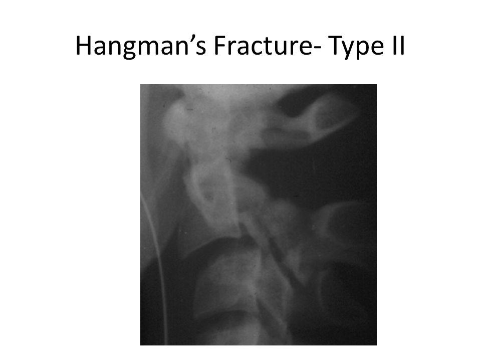 Hangman's Fracture- Type II