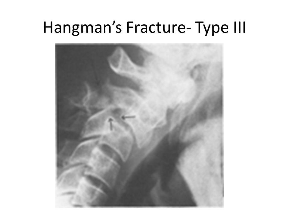 Hangman's Fracture- Type III