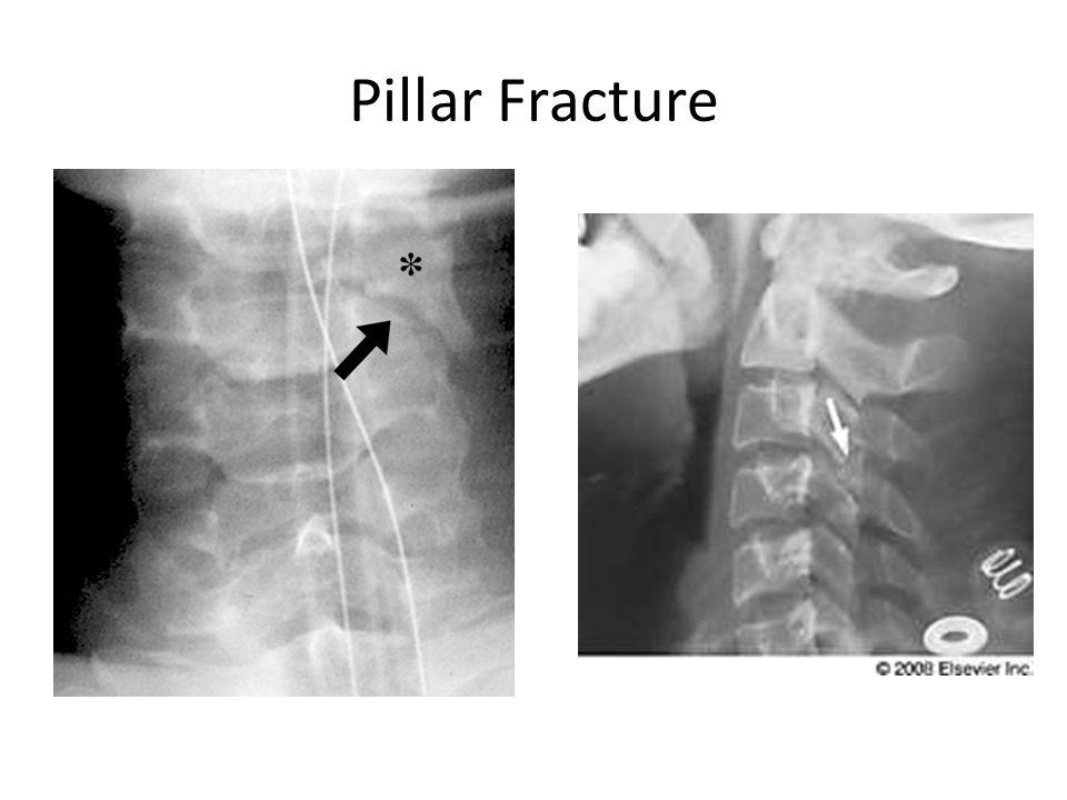 Pillar Fracture