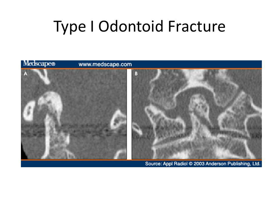 Type I Odontoid Fracture