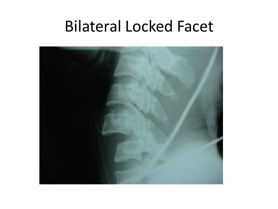 Bilateral Locked Facet