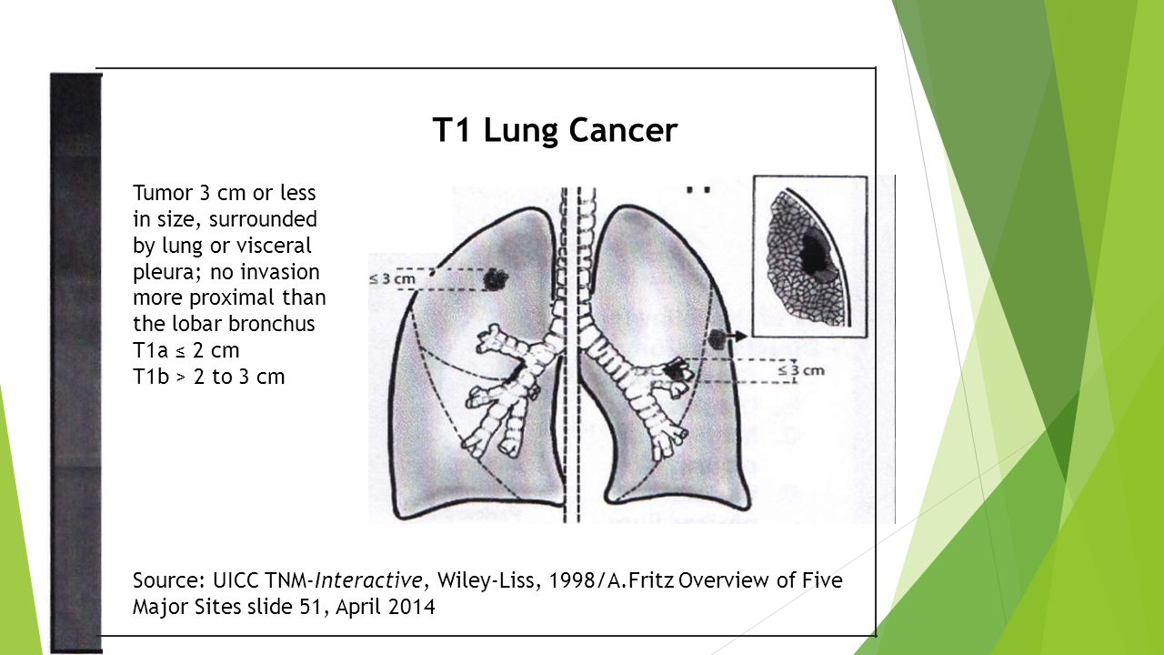 Tumor 3 cm or less in size, surrounded by lung or visceral pleura; no invasion more proximal than the lobar bronchus T1a ≤ 2 cm T1b > 2 to 3 cm T1 Lung Cancer Source: UICC TNM-Interactive, Wiley-Liss, 1998/A.Fritz Overview of Five Major Sites slide 51, April 2014
