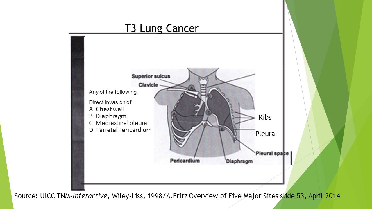 Any of the following: Direct invasion of A Chest wall B Diaphragm C Mediastinal pleura D Parietal Pericardium Source: UICC TNM-Interactive, Wiley-Liss, 1998/A.Fritz Overview of Five Major Sites slide 53, April 2014 T3 Lung Cancer Ribs Pleura
