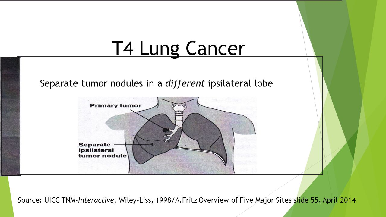 Separate tumor nodules in a different ipsilateral lobe T4 Lung Cancer Source: UICC TNM-Interactive, Wiley-Liss, 1998/A.Fritz Overview of Five Major Sites slide 55, April 2014