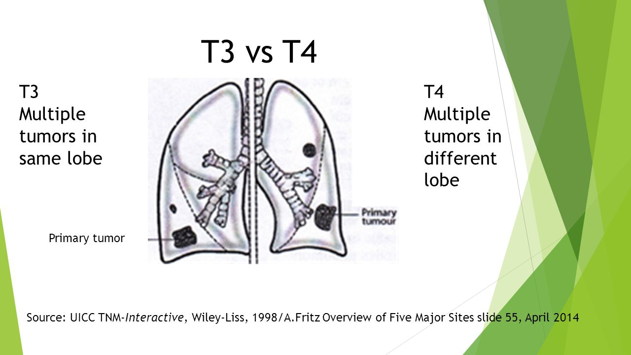 T3 Multiple tumors in same lobe Primary tumor Source: UICC TNM-Interactive, Wiley-Liss, 1998/A.Fritz Overview of Five Major Sites slide 55, April 2014