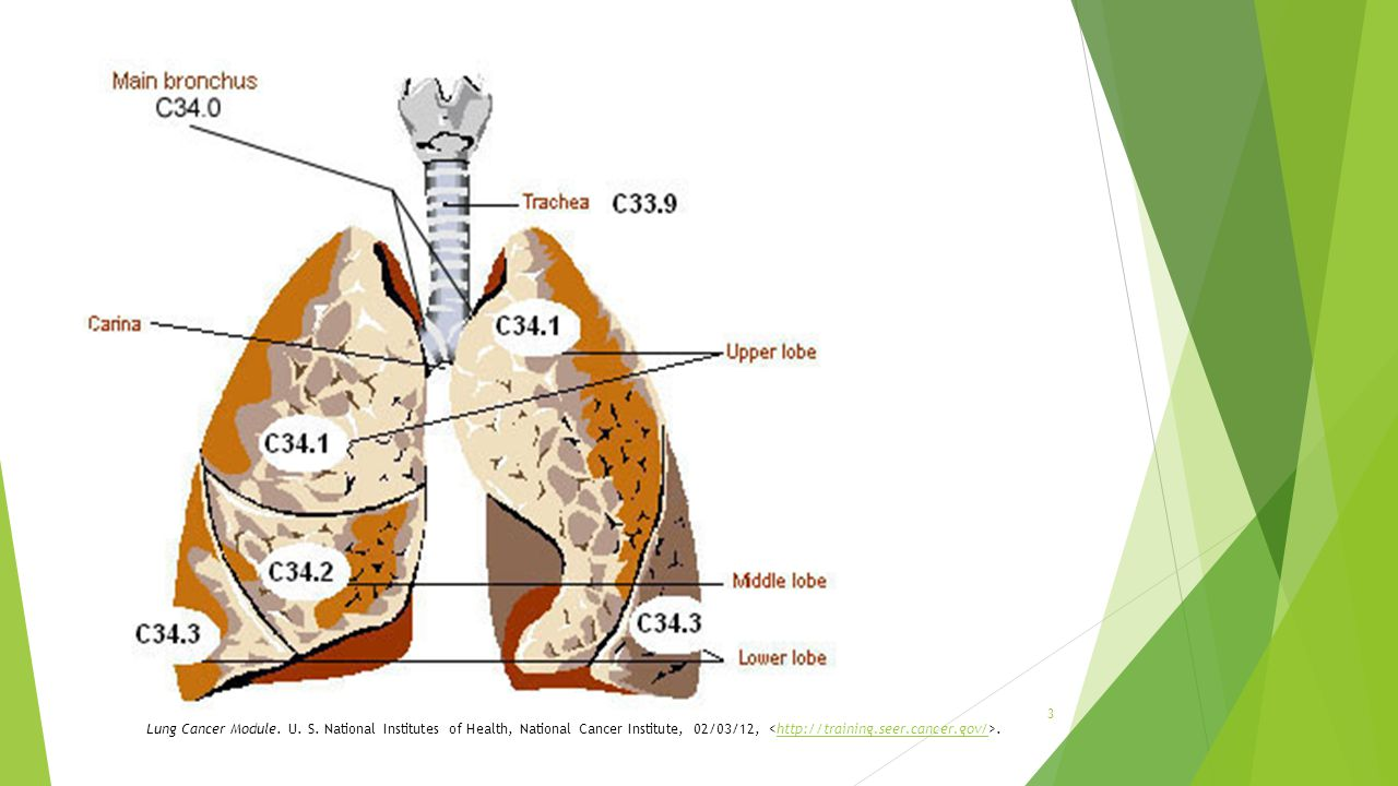 Sites + Codes… Lung Cancer Module. U. S.