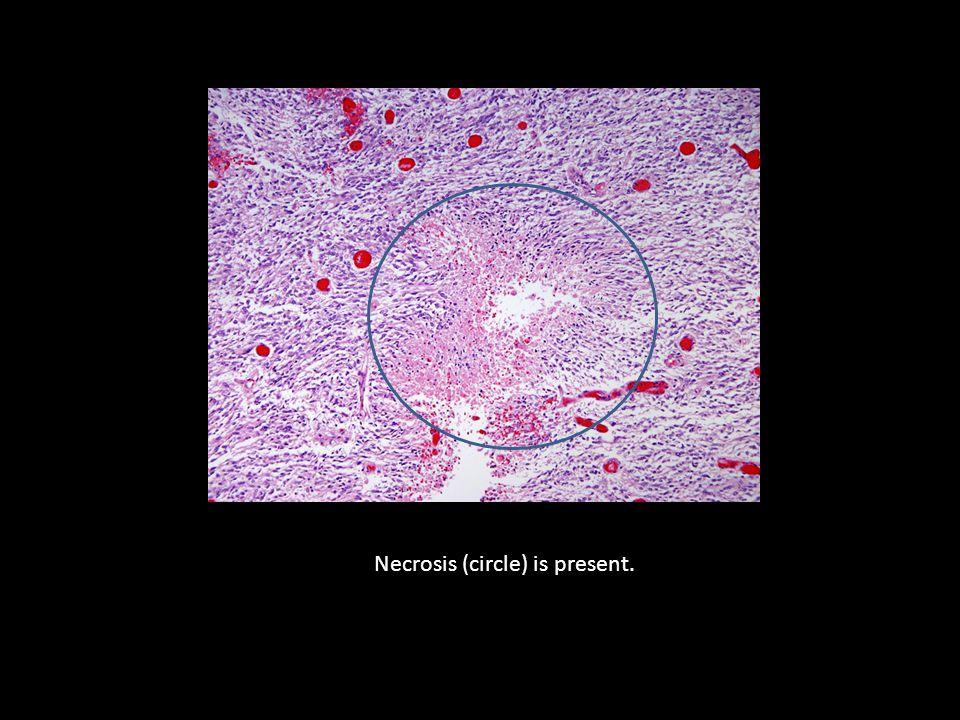 Necrosis (circle) is present.