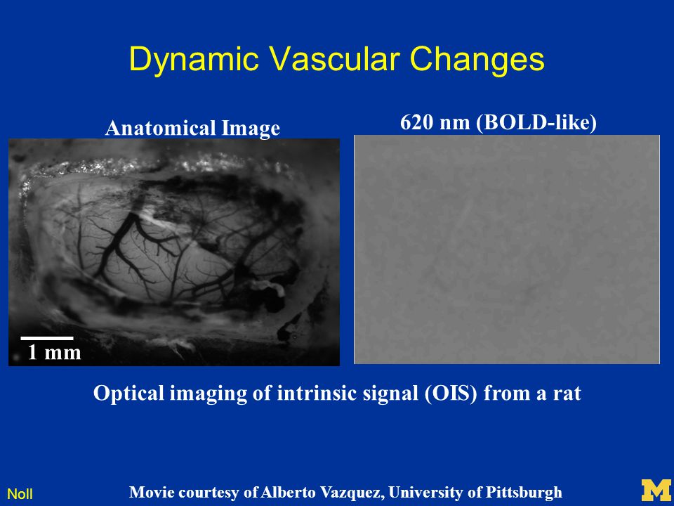 Noll Dynamic Vascular Changes Optical imaging of intrinsic signal (OIS) from a rat Movie courtesy of Alberto Vazquez, University of Pittsburgh Anatomi