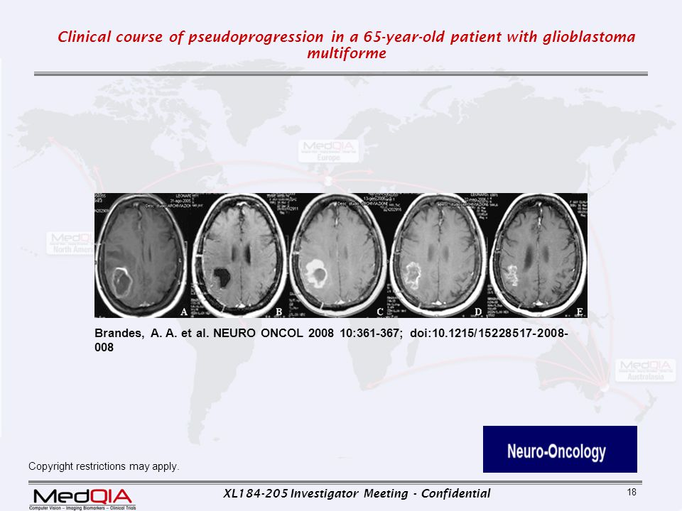 XL184-205 Investigator Meeting - Confidential 18 Copyright restrictions may apply. Brandes, A. A. et al. NEURO ONCOL 2008 10:361-367; doi:10.1215/1522
