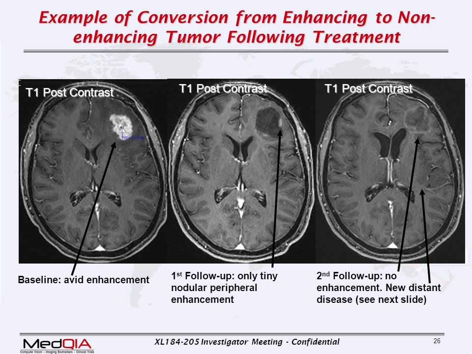 XL184-205 Investigator Meeting - Confidential 26 Example of Conversion from Enhancing to Non- enhancing Tumor Following Treatment Baseline: avid enhan