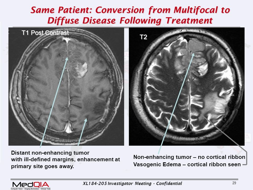 XL184-205 Investigator Meeting - Confidential 29 Same Patient: Conversion from Multifocal to Diffuse Disease Following Treatment T2 Distant non-enhanc