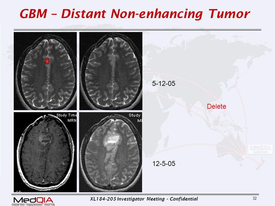 XL184-205 Investigator Meeting - Confidential 32 5-12-05 GBM – Distant Non-enhancing Tumor 12-5-05 Delete