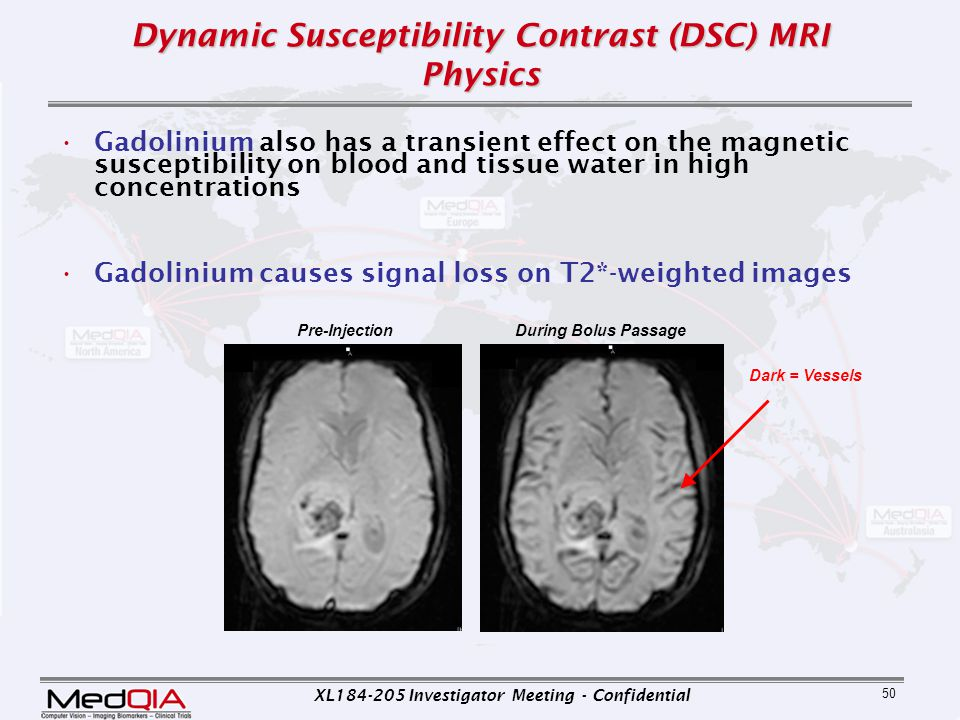 XL184-205 Investigator Meeting - Confidential 50 Dynamic Susceptibility Contrast (DSC) MRI Physics Gadolinium also has a transient effect on the magne