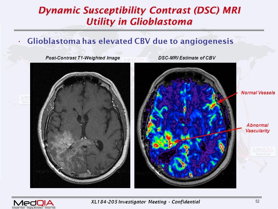 XL184-205 Investigator Meeting - Confidential 52 Dynamic Susceptibility Contrast (DSC) MRI Utility in Glioblastoma Glioblastoma has elevated CBV due t
