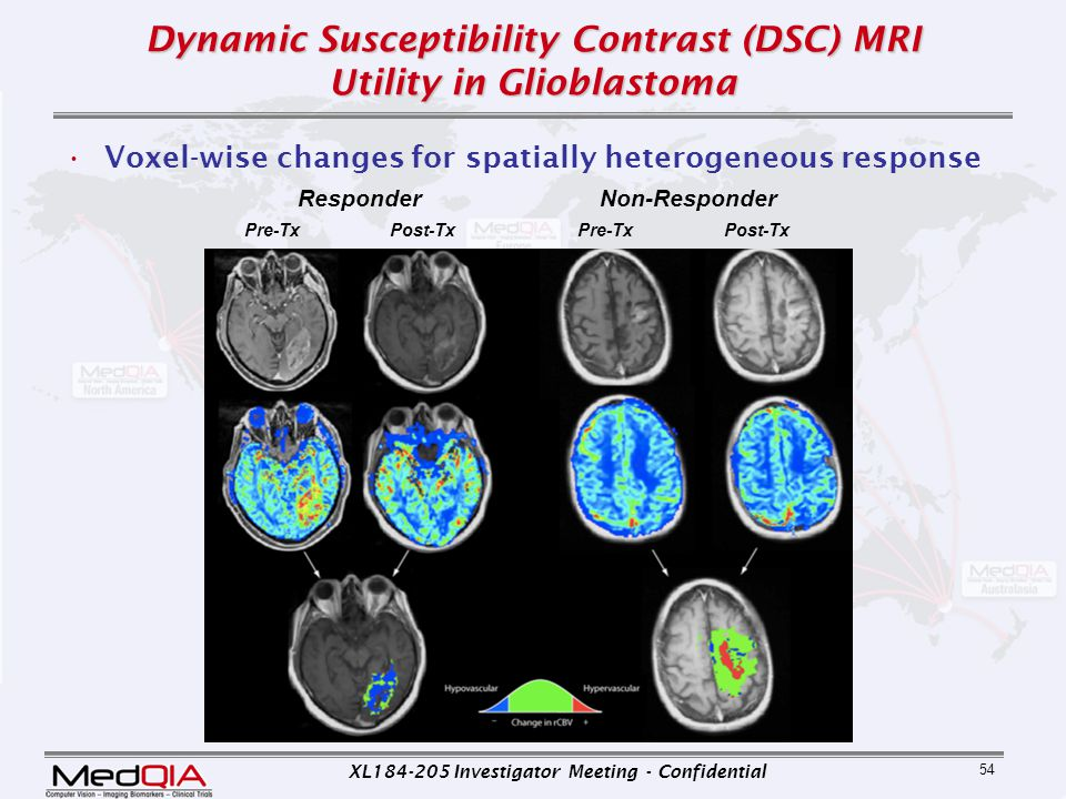 XL184-205 Investigator Meeting - Confidential 54 Dynamic Susceptibility Contrast (DSC) MRI Utility in Glioblastoma Voxel-wise changes for spatially he