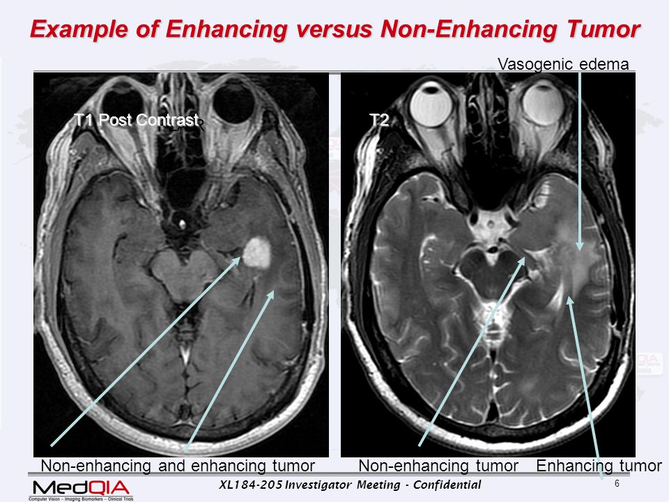 XL184-205 Investigator Meeting - Confidential 17 Limitations of Macdonald Key Limitations – Necrotic portions of lesions – Assumption contrast enhanced tissue = tumor  enhancement nonspecific o reflects disrupted blood-brain barrier o induced by of nontumoral processes » inflammation, » seizure activity, » postsurgical changes, and » radiation necrosis.