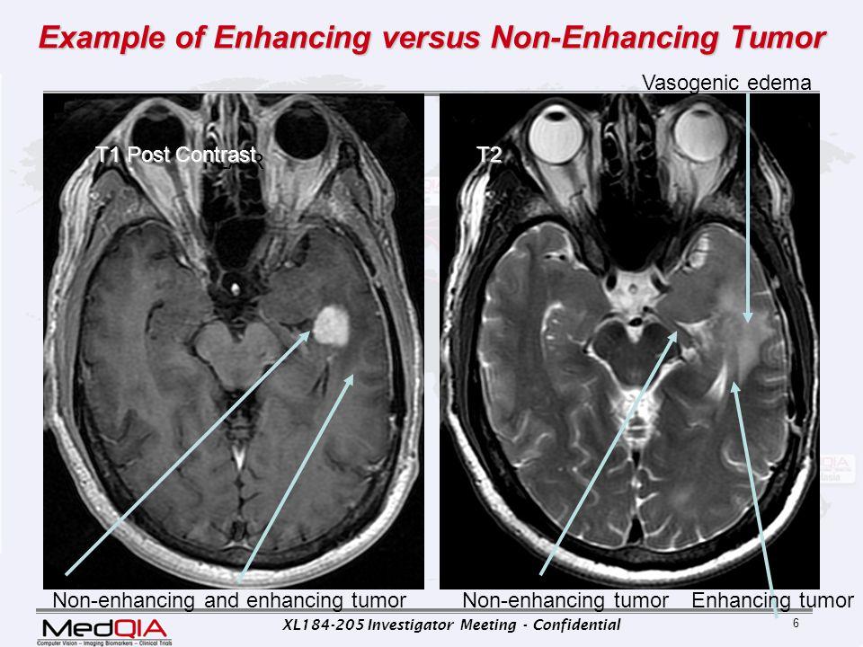 XL184-205 Investigator Meeting - Confidential 27 Same Case: Development of distant non-enhancing tumor.