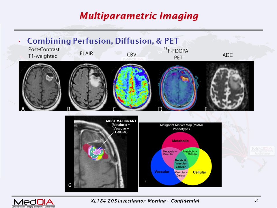 XL184-205 Investigator Meeting - Confidential 64 Multiparametric Imaging Combining Perfusion, Diffusion, & PET