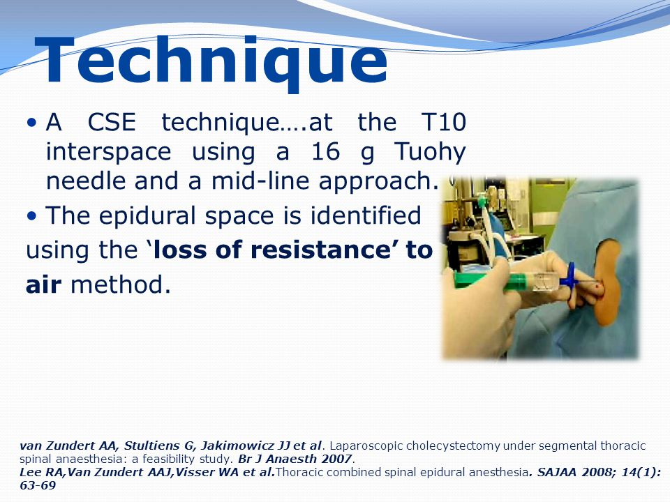 Technique A CSE technique….at the T10 interspace using a 16 g Tuohy needle and a mid-line approach. The epidural space is identified using the 'loss o