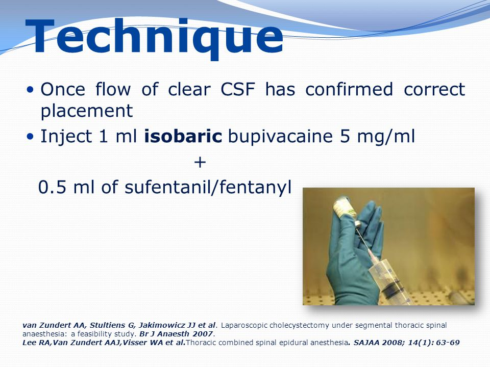 Technique Once flow of clear CSF has confirmed correct placement Inject 1 ml isobaric bupivacaine 5 mg/ml + 0.5 ml of sufentanil/fentanyl van Zundert