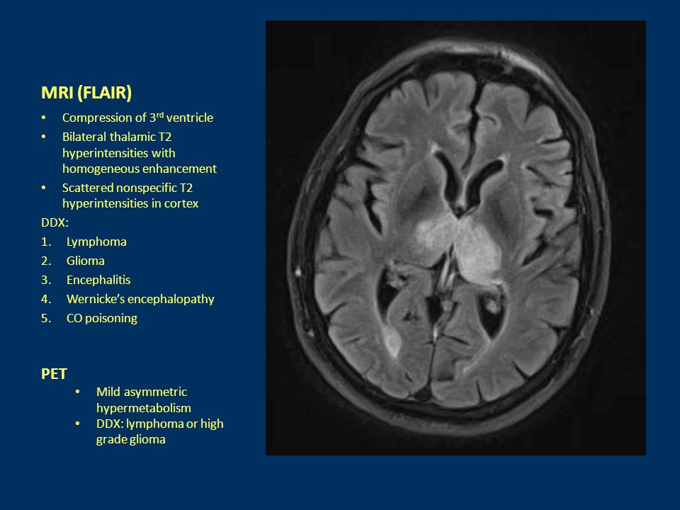 MRI (FLAIR) Compression of 3 rd ventricle Bilateral thalamic T2 hyperintensities with homogeneous enhancement Scattered nonspecific T2 hyperintensitie