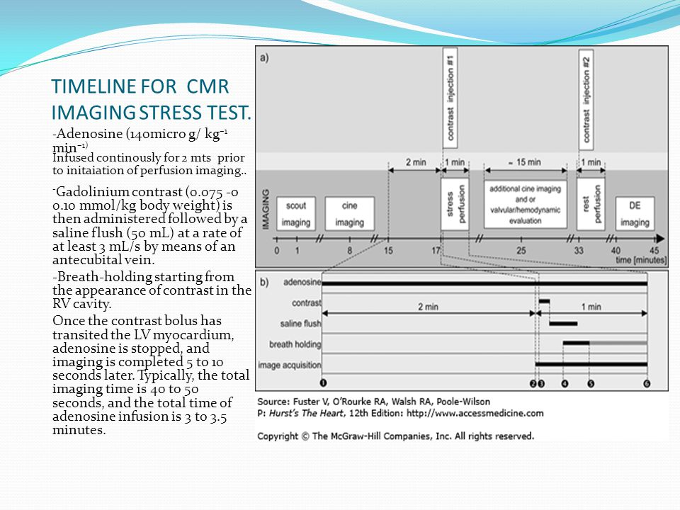 TIMELINE FOR CMR IMAGING STRESS TEST. - Adenosine (140micro g/ kg –1 min –1) Infused continously for 2 mts prior to initaiation of perfusion imaging..