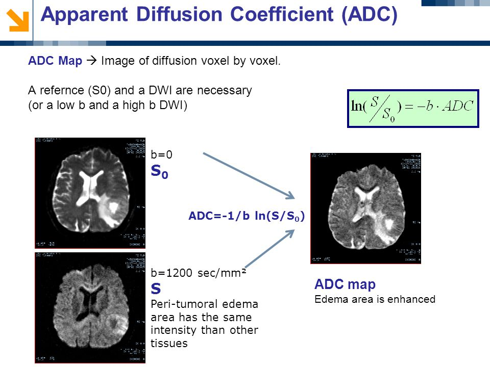 Apparent Diffusion Coefficient (ADC) ADC Map  Image of diffusion voxel by voxel.