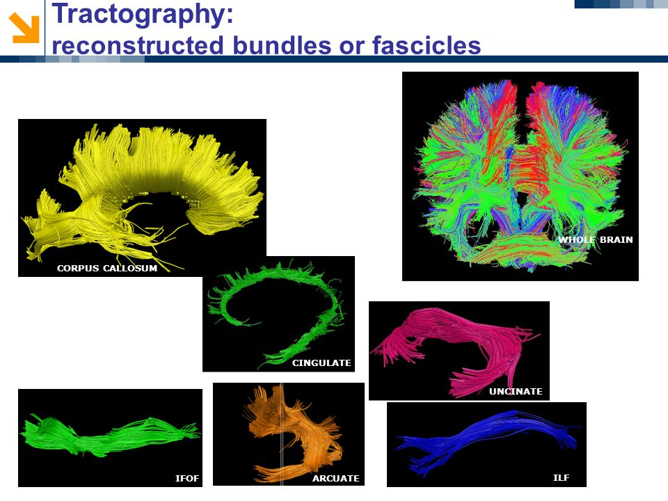 ILF ARCUATE UNCINATE CINGULATE CORPUS CALLOSUM IFOF WHOLE BRAIN Tractography: reconstructed bundles or fascicles