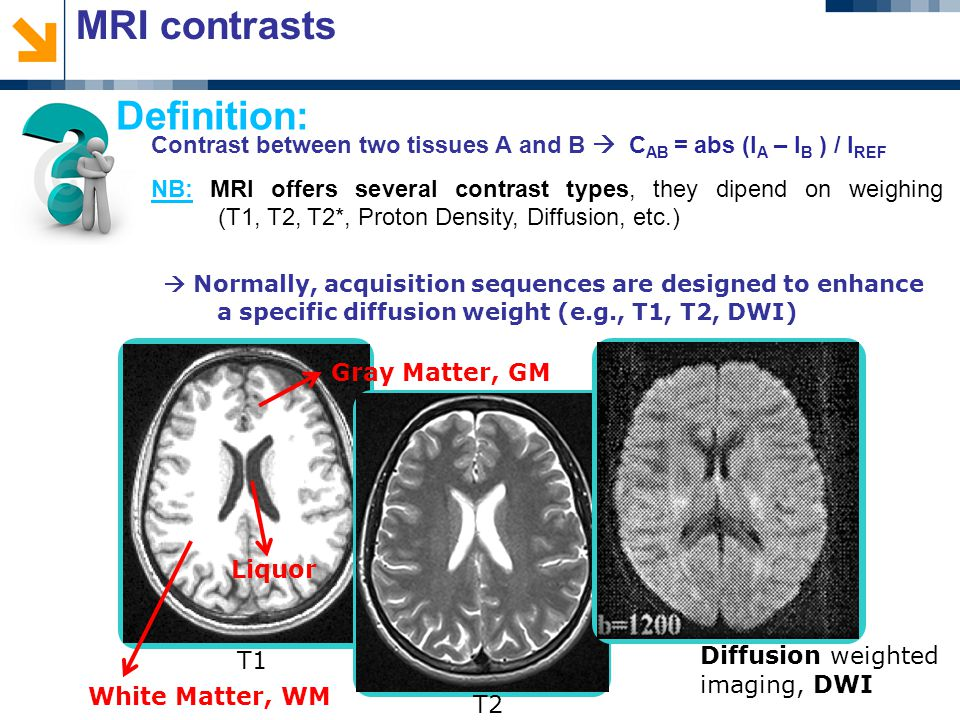 MRI contrasts Contrast between two tissues A and B  C AB = abs (I A – I B ) / I REF NB: MRI offers several contrast types, they dipend on weighing (T1, T2, T2*, Proton Density, Diffusion, etc.) Definition: T1 T2 Diffusion weighted imaging, DWI  Normally, acquisition sequences are designed to enhance a specific diffusion weight (e.g., T1, T2, DWI) Liquor White Matter, WM Gray Matter, GM