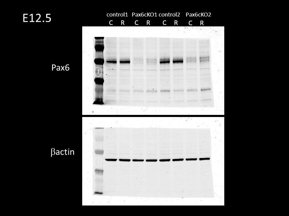 Pax6  actin CR CR CR control1control2Pax6cKO1Pax6cKO2 CR E12.5