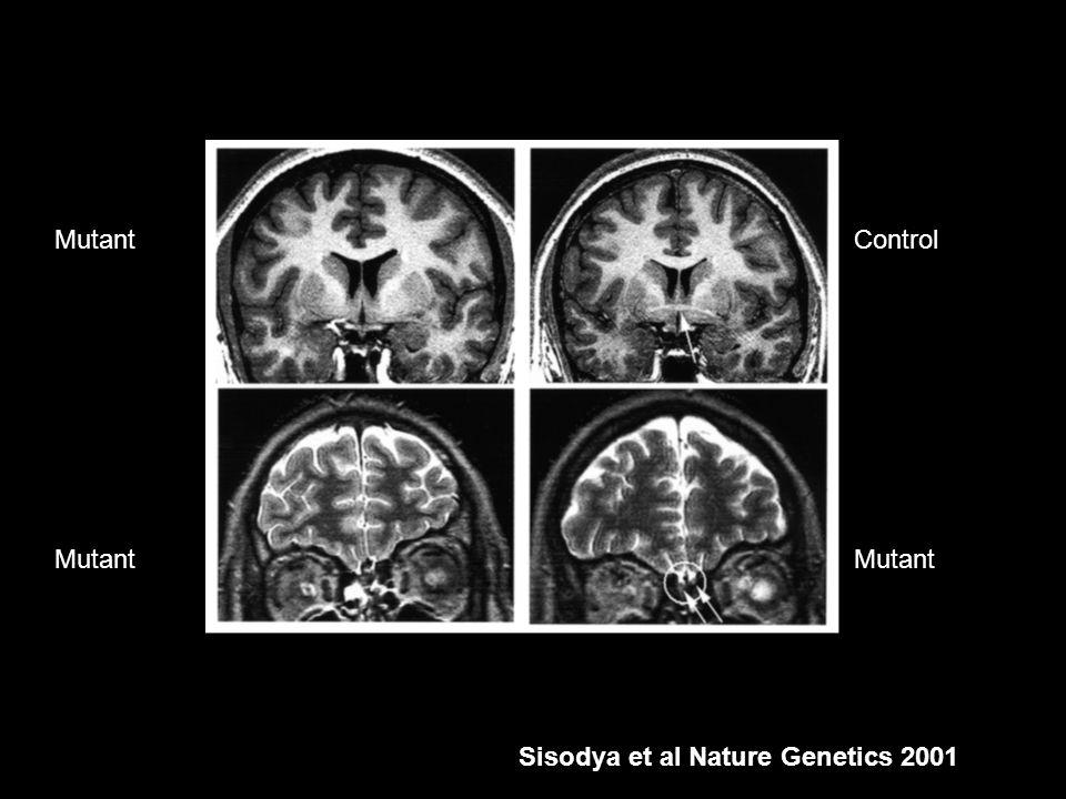 Mutant Control Mutant Sisodya et al Nature Genetics 2001