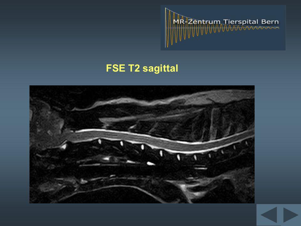 FSE T2 sagittal