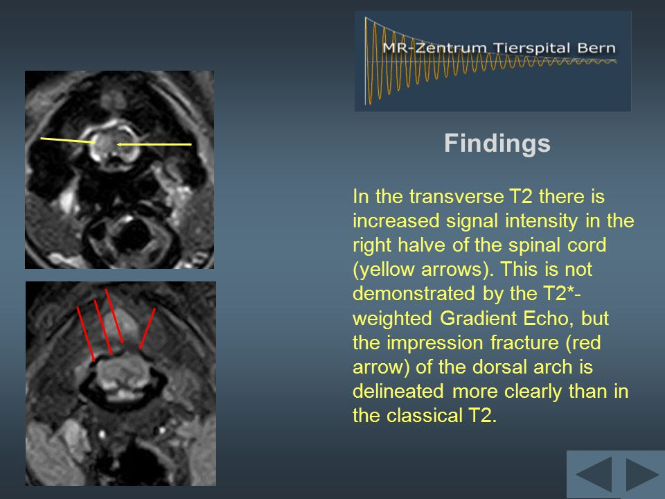 Findings In the transverse T2 there is increased signal intensity in the right halve of the spinal cord (yellow arrows).