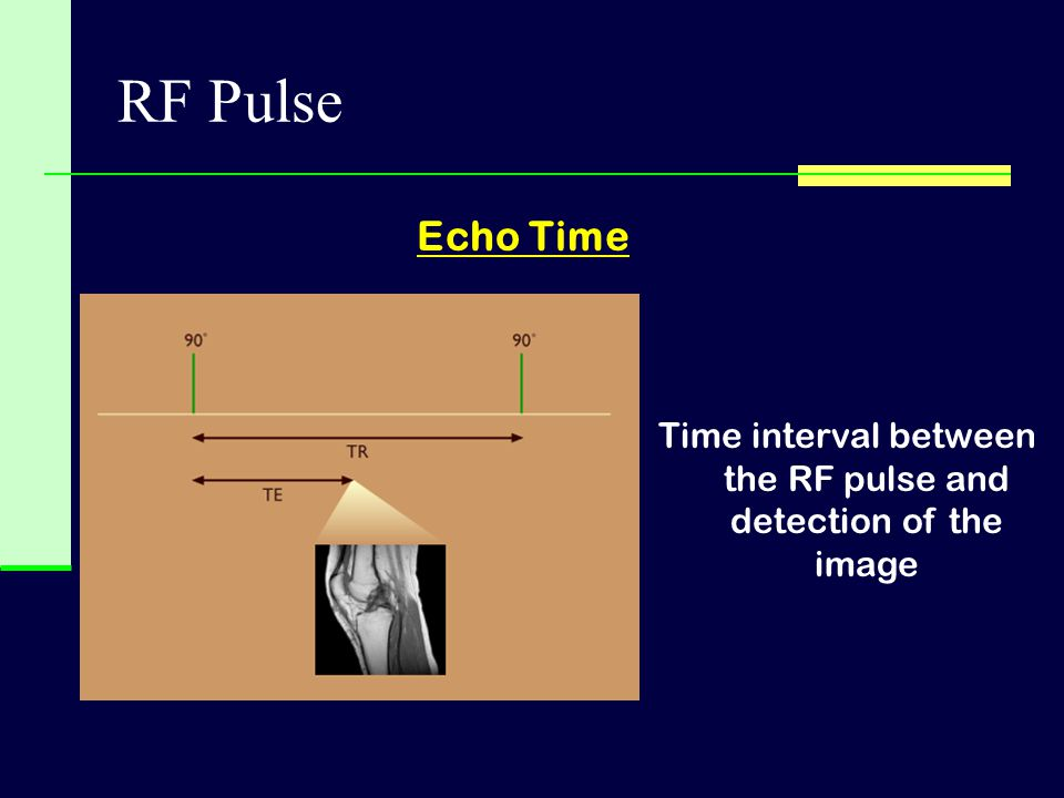 RF Pulse Echo Time Time interval between the RF pulse and detection of the image