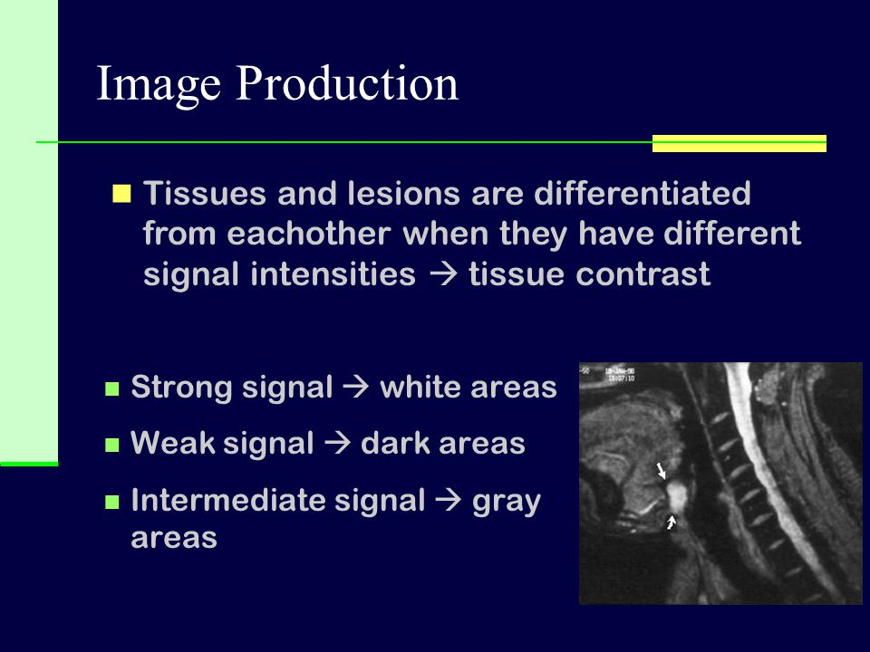 Strong signal  white areas Weak signal  dark areas Intermediate signal  gray areas Tissues and lesions are differentiated from eachother when they