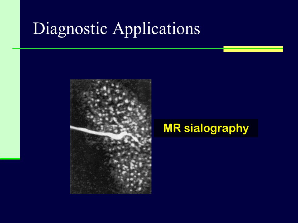 Diagnostic Applications MR sialography