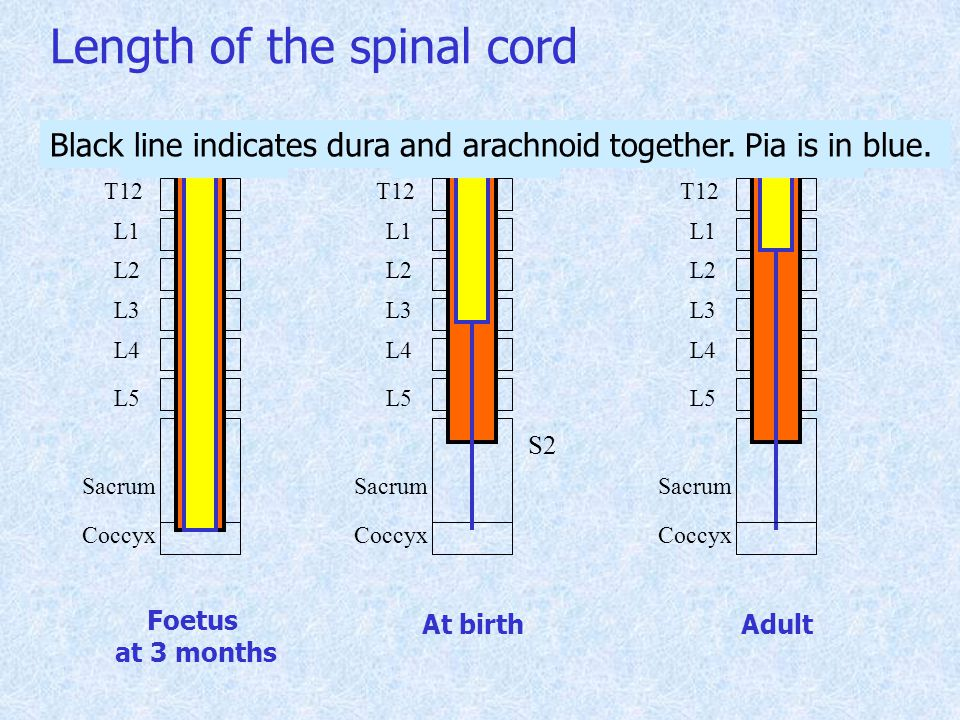 T12 L1 L2 L3 L4 L5 Sacrum Coccyx Foetus at 3 months T12 L1 L2 L3 L4 L5 Sacrum Coccyx Adult Length of the spinal cord T12 L1 L2 L3 L4 L5 Sacrum Coccyx