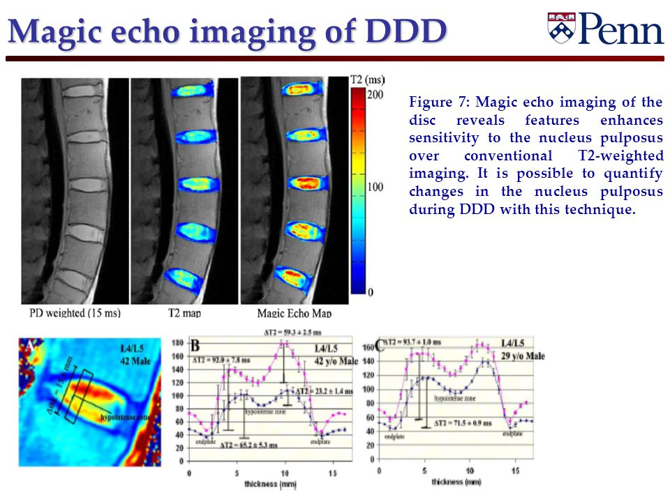 Magic echo imaging of DDD Figure 7: Magic echo imaging of the disc reveals features enhances sensitivity to the nucleus pulposus over conventional T2-weighted imaging.