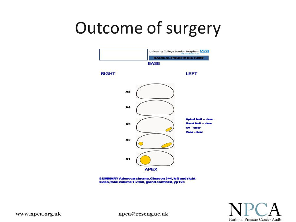 www.npca.org.uk npca@rcseng.ac.uk Outcome of surgery